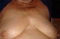 Alte faltige Omas nackt vor der Kamera